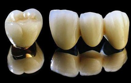 烤瓷牙修复的种类与临床应用详解