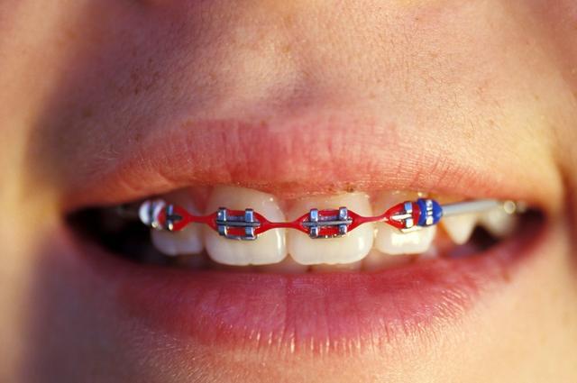 常见的牙齿矫正器有哪些?